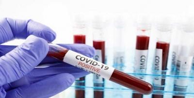Covid-19'da korkutan artış